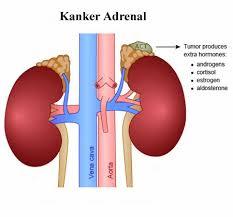 Hasil gambar untuk ramuan obat herbal kanker kelenjar adrenal